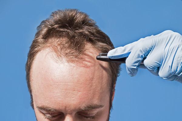 French Medical Center - Hair Transplant Men