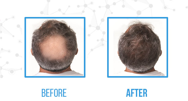 French Medical Center - Male Hair Transplant Before After