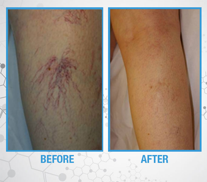 French Medical Center - Spider Veins - Before and After