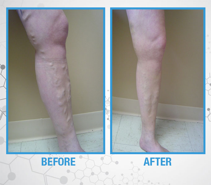 French Medical Center - Bulging Veins - Before and After
